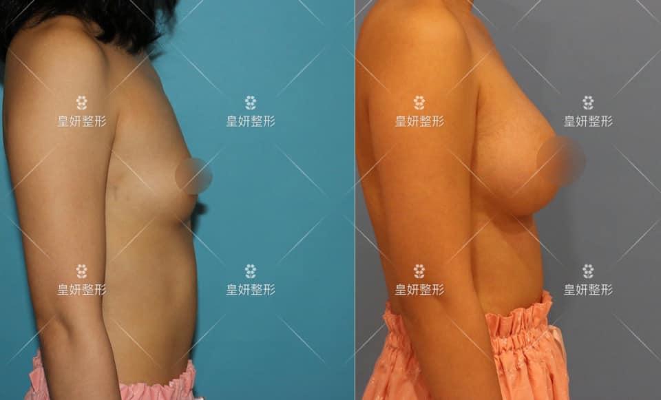 台北隆乳推薦,隆乳手術推薦,隆乳手術推薦醫師