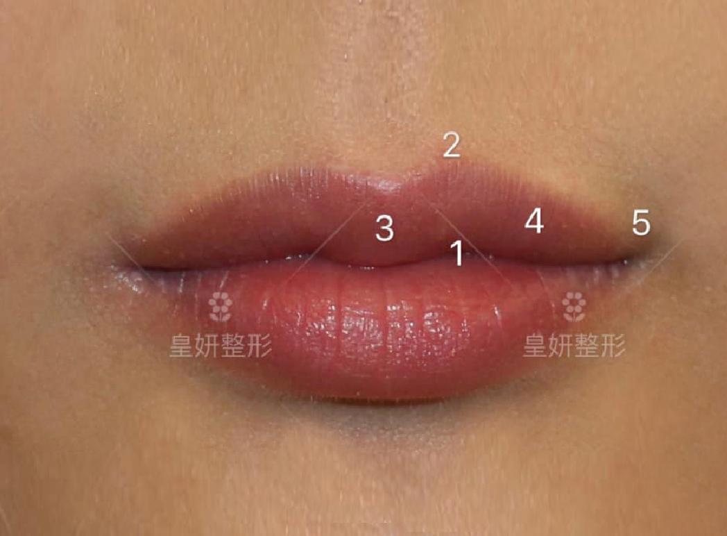 縮唇,微笑縮唇手術