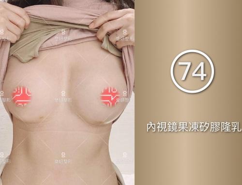 【皇妍蘇皇銓分享74】內視鏡果凍矽膠隆乳