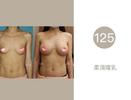 【皇妍分享125】柔滴隆乳